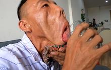 Khát khao của chàng trai mặt quỷ, 15 năm ngủ ngồi