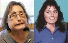 Bệnh nhân ghép mặt sống lâu nhất từ trước đến nay qua đời