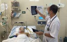 Thiếu niên 17 tuổi mắc sốt xuất huyết tử vong do sợ Covid-19, tự truyền dịch tại nhà