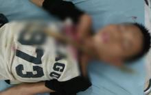 Trèo cây ngã, bé trai 12 tuổi bị cành cây đâm xuyên cổ