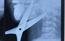 Bé trai 7 tuổi bị kéo đâm xuyên cổ khi cắt giấy làm diều