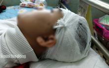 Sở GD-ĐT Thanh Hóa yêu cầu làm rõ trách nhiệm trong vụ nam sinh bị đánh vỡ sọ não