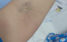 TP HCM: Sản phụ liệt nửa người sau sinh mổ tại Bệnh viện Phụ sản Mêkông