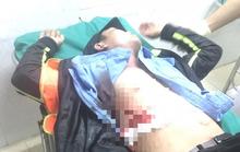 Nhân viên Trạm BOT Ninh Xuân bị đâm phải nhập viện