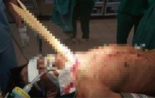 Cứu người đàn ông bị tai nạn hy hữu - thanh gỗ nửa mét đâm xuyên cổ