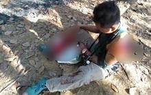 Kinh hãi người đàn ông bị bò tót húc nát vai và chân ở Đồng Nai