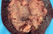 TP HCM: Người đàn ông tiểu ra máu như.... tiết canh