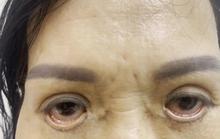 Ám ảnh đôi mắt của người phụ nữ đến từ Bình Dương