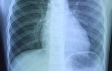 Bé gái 6 tuổi suýt tắt thở vì nuốt phải đồng xu