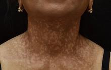 Người phụ nữ mắc bệnh hiếm gặp, đột nhiên rụng tóc, sạm da