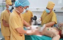 Nam thanh niên bị hoại tử da, lộ tinh hoàn sau đắp thuốc nam