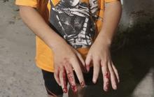 Chủ tịch nước đề nghị TP HCM làm rõ vụ trẻ em bị bạo hành