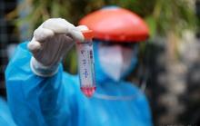TP HCM: Làm rõ 208 ca nhiễm SARS-CoV-2 chưa rõ nguồn lây