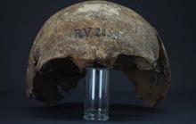 Tiết lộ rùng mình từ người đàn ông 5.000 tuổi chết vì hải ly cắn