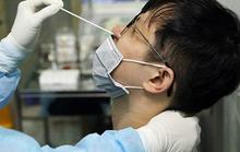 Trường hợp tái nhiễm SARS-CoV-2 sau gần 1 năm có phải do mới nhiễm bệnh?
