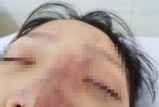 Một nữ sinh có nguy cơ mù mắt vì tiêm filler
