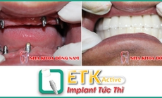Cấy ghép răng Implant ETK Active ở đâu?