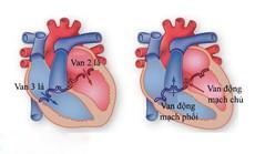 Hở van tim đã khổ, đừng để tiến triển thành suy tim còn khổ hơn