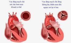 Thoát khỏi suy tim độ 2 do hở van động mạch chủ