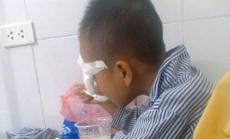 Học sinh lớp 1 bị bạn ném bi sắt vào mắt gây tổn thương nặng