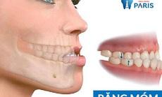 Niềng răng có hết móm không?