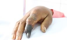 Bị nọc độc rắn hổ mang chúa dài 2,4 mét tấn công, người đàn ông hoại tử ngón tay