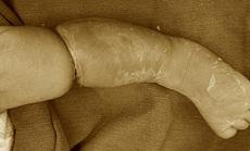 Bé trai 9 ngày tuổi bị hội chứng vòng thắt bẩm sinh hiếm gặp