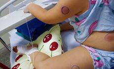 """Phát hiện 1 bé gái ở Quảng Bình nhiễm vi khuẩn """"ăn thịt người"""""""