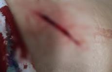 TP HCM: Cướp dùng dao cắt túi đeo, rạch đùi nạn nhân