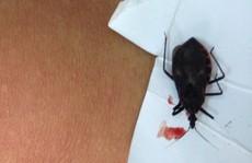 Hà Nội: Một bệnh nhân nhập viện do bọ xít hút máu cắn