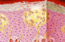 Một ca bệnh da liễu hiếm gặp trên thai phụ