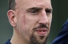 Chấn thương dai dẳng, Ribery vẫn được dự World Cup