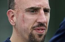 Ribery bất ngờ chia tay tuyển Pháp