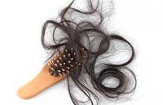 Rụng tóc ở phụ nữ: Nhiều nguyên nhân