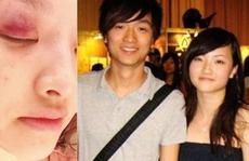 Nữ ca sĩ tố bị bạn trai đấm vì nghi ngoại tình