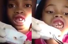 Gắp 15 con dòi ra khỏi miệng bé gái