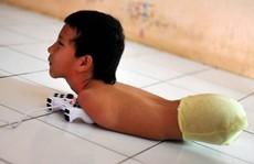 Nghị lực phi thường của bé trai không tay chân