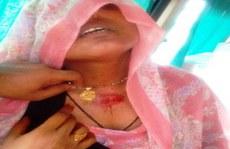 Bị anh trai bắn vì không chịu hôn nhân sắp đặt