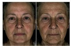 Trông già hơn tuổi do gien