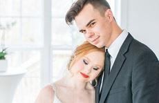 Người mẫu mắc chứng down lung linh trong bộ ảnh cưới