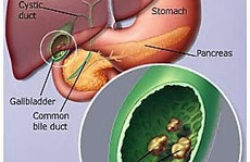 Sỏi mật làm tăng nguy cơ bệnh tim