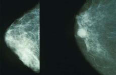 """Liệu pháp """"bỏ đói"""" tế bào ung thư vú"""