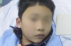 Đầu bút bi dài 1 cm nằm 4 ngày trong phế quản bé trai 7 tuổi