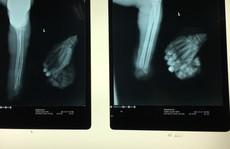 Đang cưa gỗ bị cắt lìa tay trái