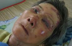 Cụ bà ăn xin bị nữ quái trộm đập đầu may mắn thoát chết