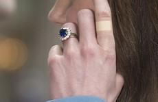 Băng dán bí ẩn trên tay Công nương Kate