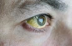 Vì sao vàng da, vàng mắt?