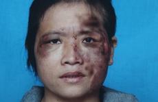 Vợ tố chồng bạo hành dã man vì bán hàng đa cấp mất tiền