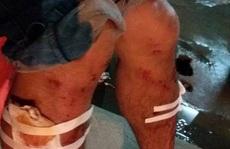 Sập giàn giáo công trình của Mường Thanh, 3 người bị thương