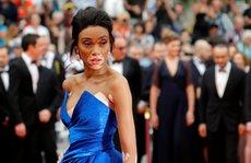 Người mẫu bạch biến tự tin khoe dáng tại Cannes 70